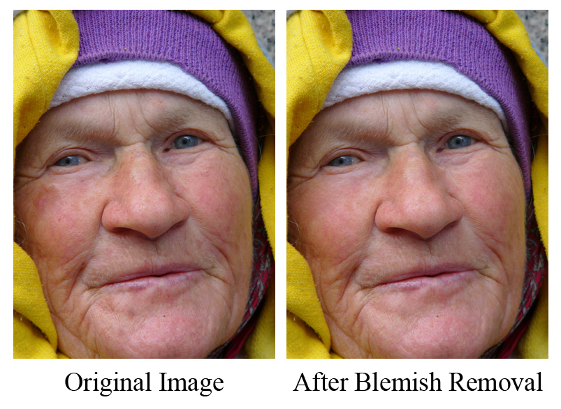 facecomp Quick Skin Retouching, Part 1: Removing Blemishes